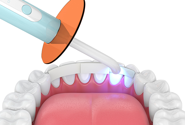 Why Might Dental Bonding Be Needed