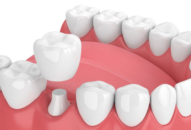 Why Might Dental Crowns For Children Be Needed
