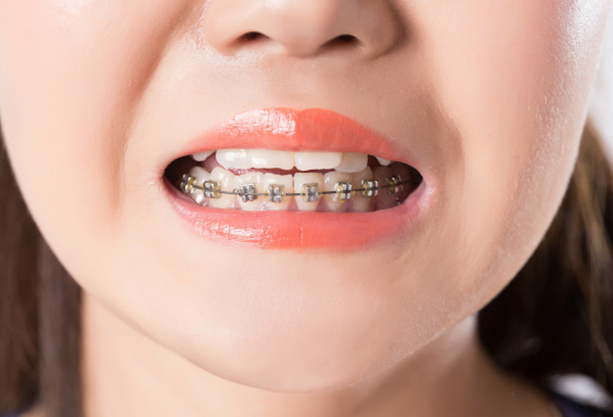 Why Might Early Orthodontic Treatment Be Needed