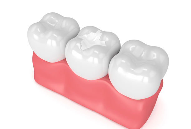 Why Might Sealants Be Needed