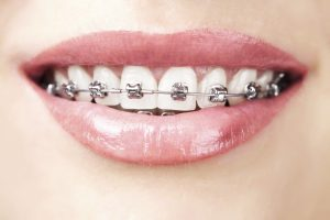 Reasons That Increase The Duration Of Treatment With Braces
