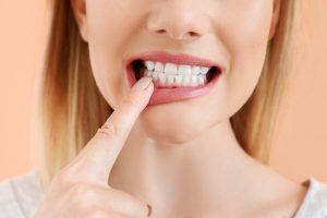 prevent gum disease